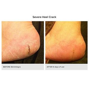 6771a3c2d90d 300x300 - SkinIntegra Rapid Crack Repair Cream Helps Heal Dry Cracked Skin on Feet, Heels, Hands, Knees. For Calluses, Wounds, Cuts, Diabetics. Podiatrist Recommended. No Parabens, Petrolatum or Preservatives.
