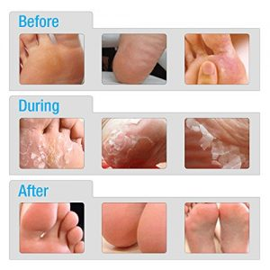 cde1055d0613 300x300 - Baby Feet Exfoliating Foot Peel Mask | Exfoliating Feet Calluses and Dead Skin Remover | Get A Baby Soft Foot Touch